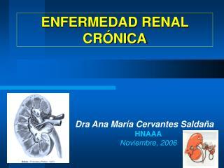 ENFERMEDAD RENAL CR NICA