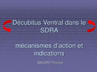 D cubitus Ventral dans le  SDRA    m canismes d action et indications