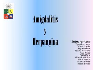 Amigdalitis  y  Herpangina