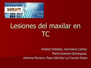 Lesiones del maxilar en TC