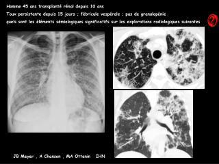 Homme 45 ans transplant  r nal depuis 10 ans Toux persistante depuis 15 jours ; f bricule vesp rale ; pas de granulop ni