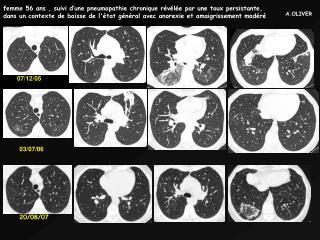 Femme 56 ans , suivi d une pneumopathie chronique r v l e par une toux persistante, dans un contexte de baisse de l tat