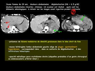 Jeune femme de 24 ans , douleurs abdominales , d globulisation Hb  6.5 g