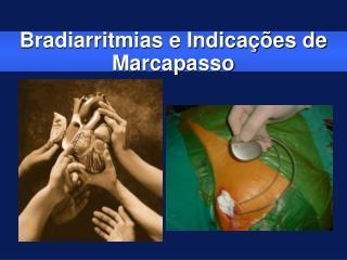 Bradiarritmias e Indica  es de Marcapasso
