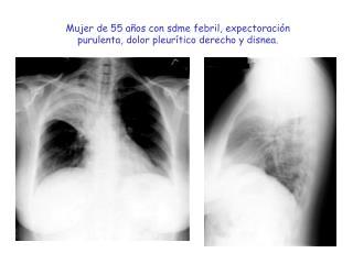 Mujer de 55 a os con sdme febril, expectoraci n purulenta, dolor pleur tico derecho y disnea.