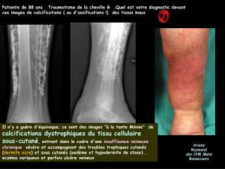 Patiente de 88 ans   Traumatisme de la cheville G  .Quel est votre diagnostic devant ces images de calcifications  ou do