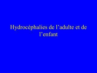 Hydroc phalies de l adulte et de l enfant
