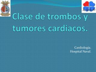 Clase de trombos y tumores cardiacos.
