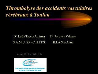 Thrombolyse des accidents vasculaires c r braux   Toulon
