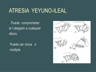 ATRESIA  YEYUNO-ILEAL