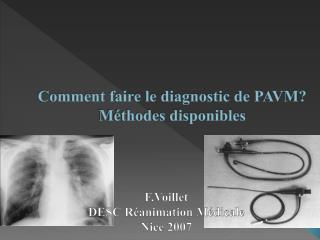 Comment faire le diagnostic de PAVM M thodes disponibles