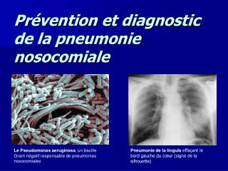 Pr vention et diagnostic de la pneumonie nosocomiale