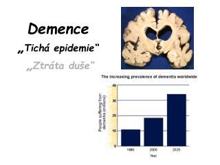 Demence  Tich  epidemie    Ztr ta du e