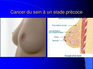 Cancer du sein   un stade pr coce