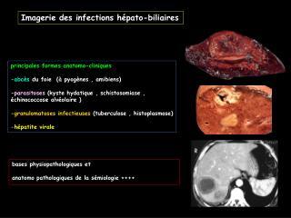 Imagerie des infections h pato-biliaires