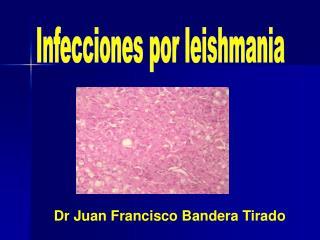 Infecciones por leishmania