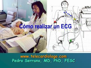 C mo realizar un ECG