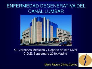 ENFERMEDAD DEGENERATIVA DEL CANAL LUMBAR
