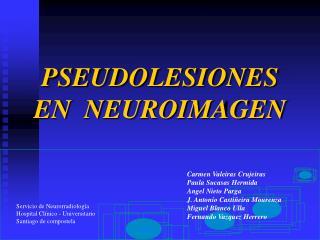 PSEUDOLESIONES EN  NEUROIMAGEN