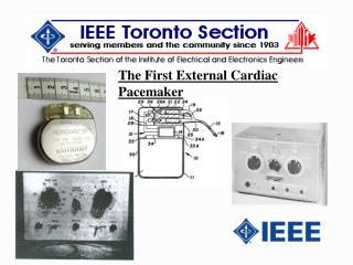 The First External Cardiac Pacemaker