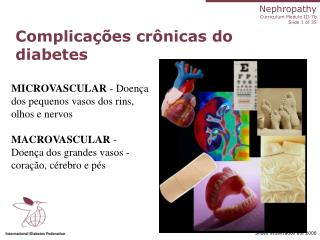 Complica  es cr nicas do diabetes