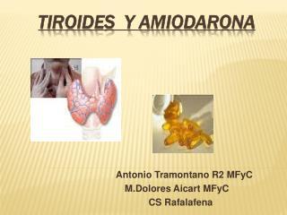 TIROIDEs  Y AMIODARONA