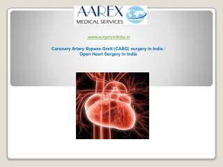 Coronary Artery Bypass Graft (CABG) surgery in India