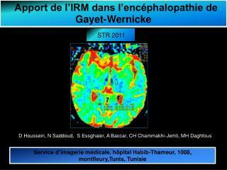 Apport de l IRM dans l enc phalopathie de Gayet-Wernicke