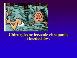 Chirurgiczne leczenie chrapania  i bezdech w.