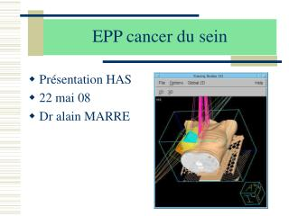 EPP cancer du sein