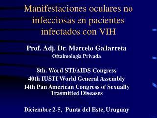 Manifestaciones oculares no infecciosas en pacientes infectados con VIH