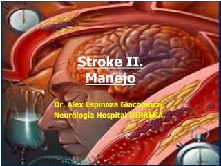 Stroke II. Manejo