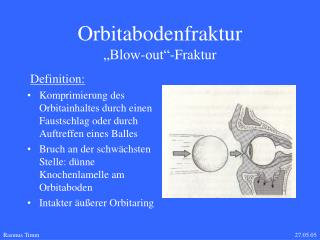Orbitabodenfraktur             Blow-out -Fraktur