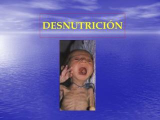 DESNUTRICI N