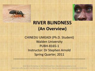 RIVER BLINDNESS An Overview