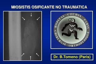 MIOSISTIS OSIFICANTE NO TRAUMATICA