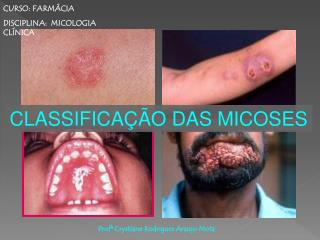CLASSIFICA  O DAS MICOSES