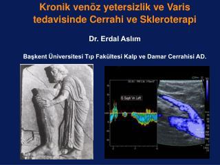 Kronik ven z yetersizlik ve Varis tedavisinde Cerrahi ve Skleroterapi  Dr. Erdal Aslim  Baskent  niversitesi Tip Fak lte