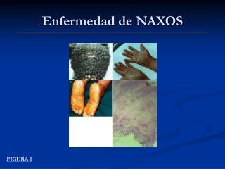 Enfermedad de NAXOS