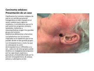Carcinoma seb ceo: Presentaci n de un caso
