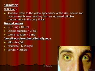 JAUNDICE  Definition:- Jaundice refers to the yellow appearance of the skin, sclerae and mucous membranes resulting from