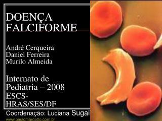 DOEN A FALCIFORME  Andr  Cerqueira Daniel Ferreira Murilo Almeida  Internato de Pediatria   2008  ESCS- HRAS