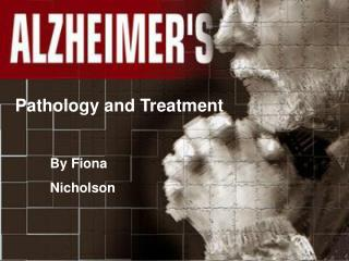 Alzheimer s Disease Overview