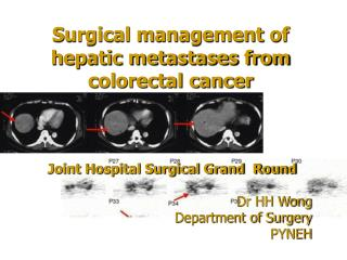 Surgical management of hepatic metastases from colorectal cancer
