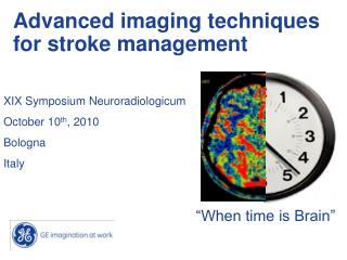 Advanced imaging techniques for stroke management