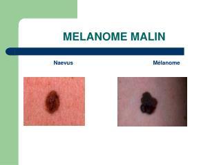 MELANOME MALIN