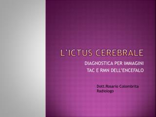 L ICTUS CEREBRALE