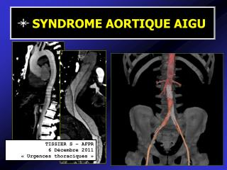 SYNDROME AORTIQUE AIGU
