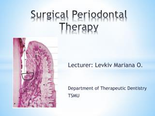 Surgical  Periodontal Therapy