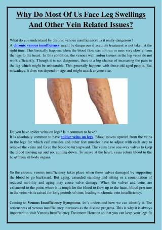 Why Do Most Of Us Face Leg Swellings And Other Vein Related Issues?